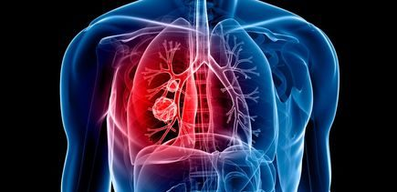 Innovative new treatment offers curative hope for lung cancer