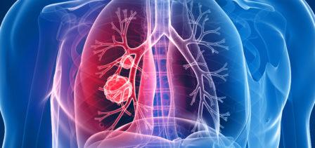 Lung cancer diagnoses via A&E are a 'travesty' says new report